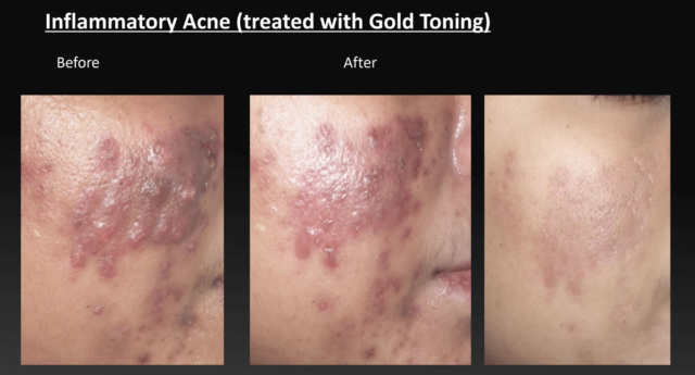 Inflammatory Acne - Before And After