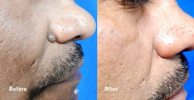 Viral Verrucae (warts) - Before And After