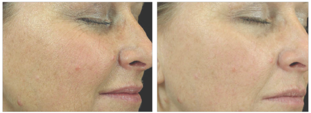Peptide Line Corrector Aging Before and After