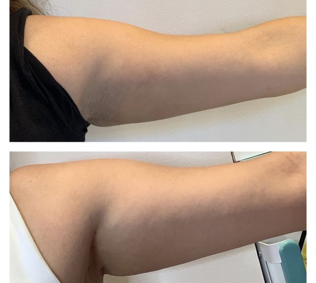 Aqualyx - Before And After